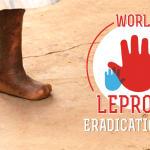 World Leprosy Eradication Day: 30th January