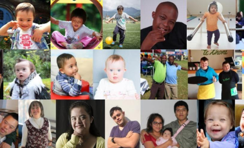 World Down Syndrome Day observed on 21 March_40.1