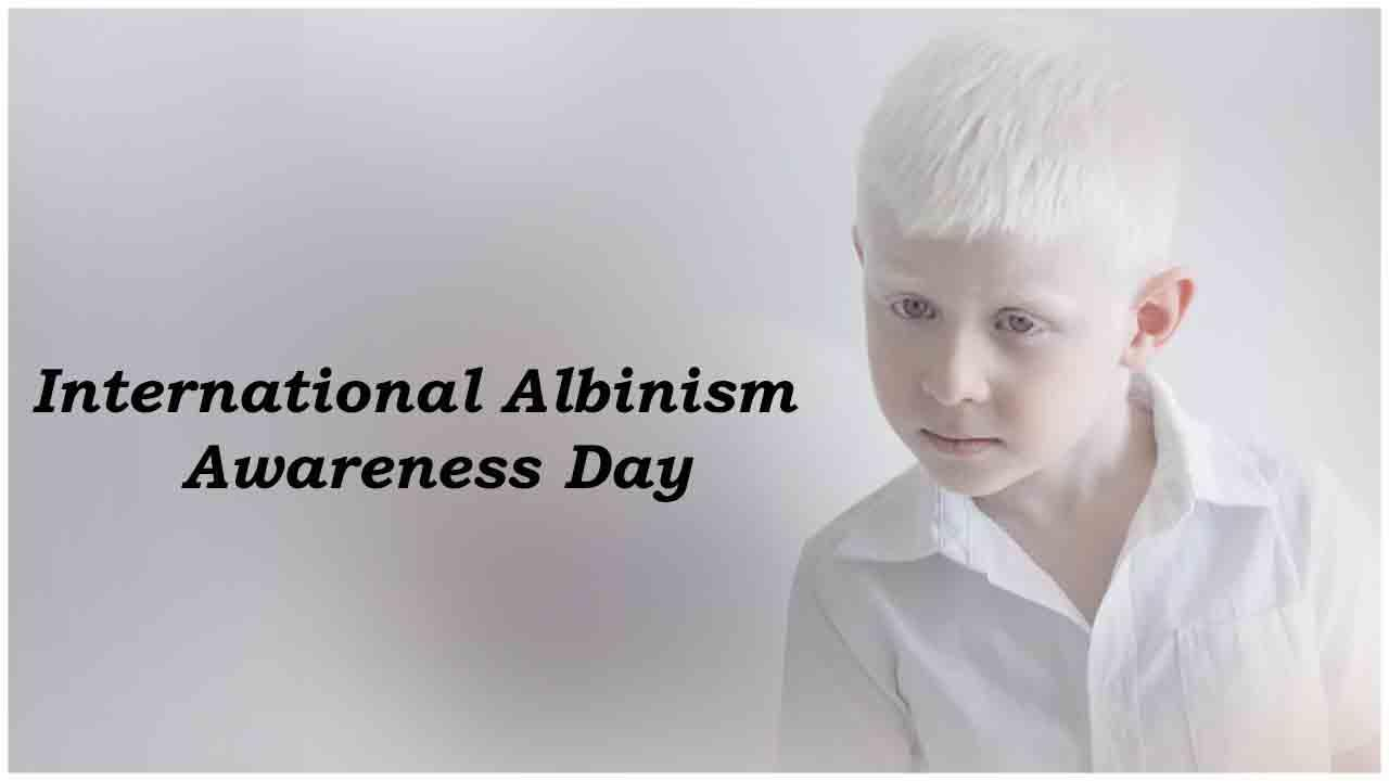 International Albinism Awareness Day: 13 June   आंतरराष्ट्रीय अल्बनिझम जागृती दिन: 13 जून_40.1